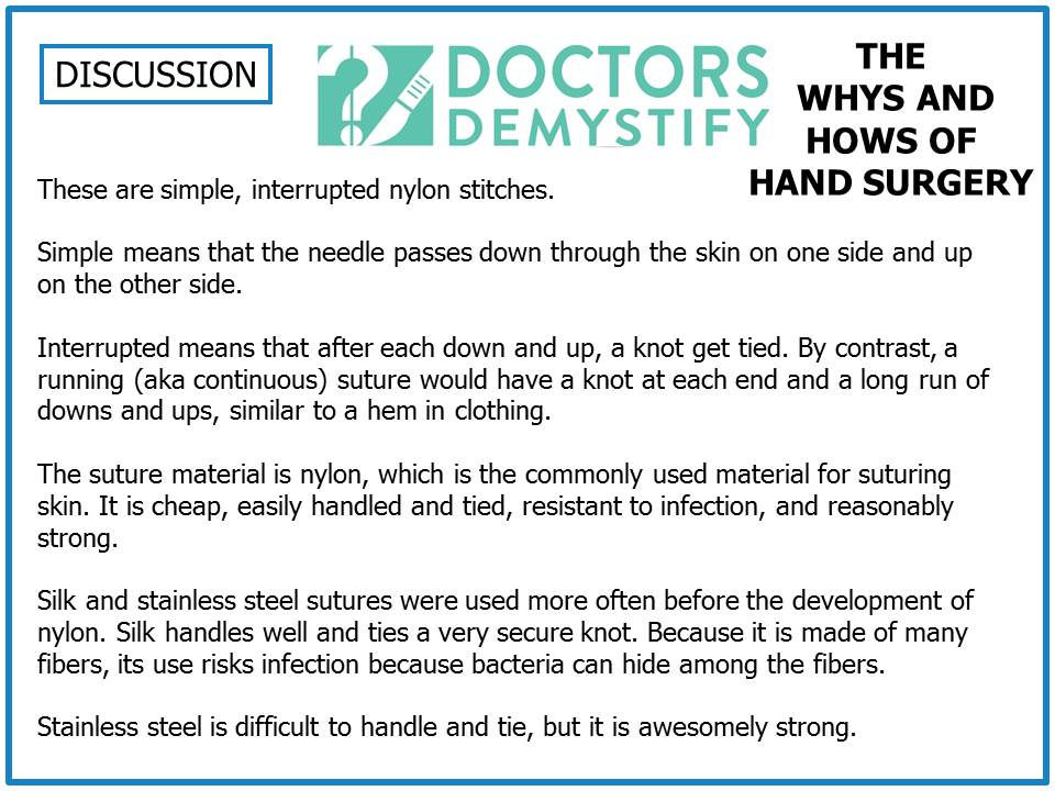 WHY_HOW_POSTER_discussion_sample_for_website