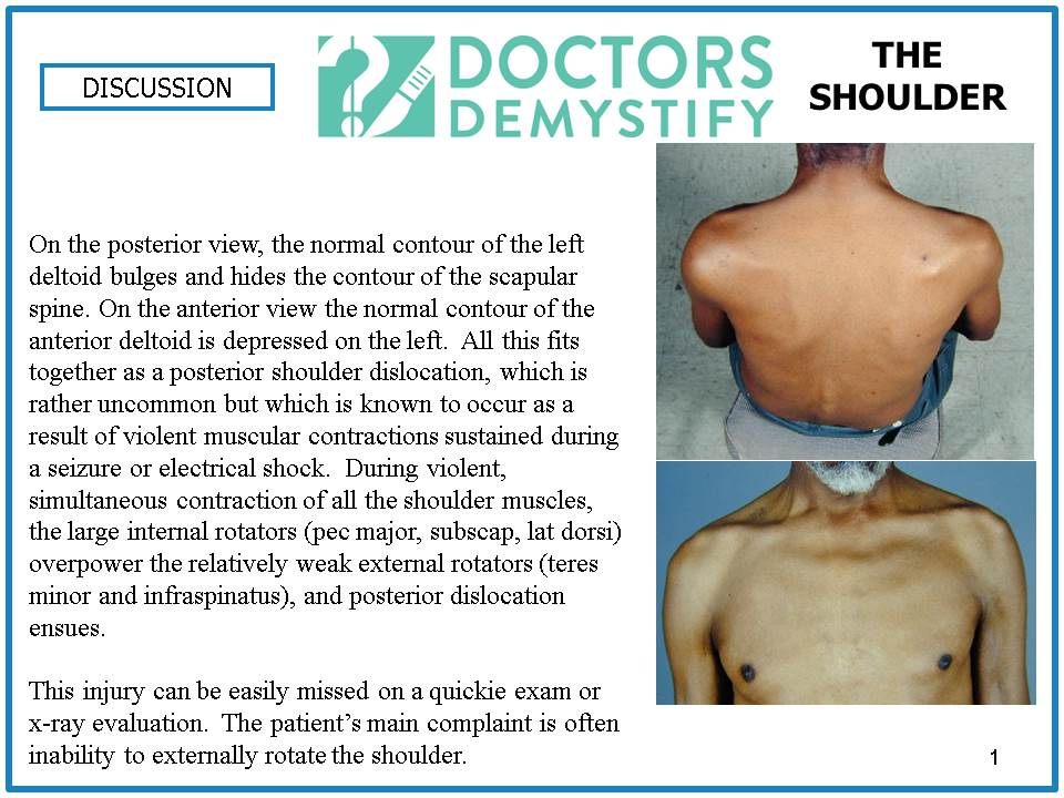 single_shoulder_discussion_slide (1)