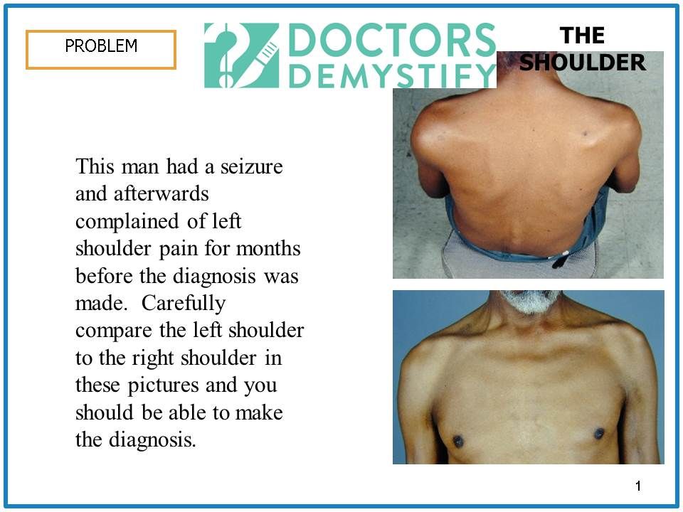 single_shoulder_problem_slide